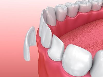 Illustration of dental veneers | Dentist Paddington NSW